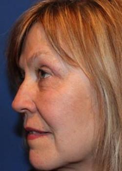 Eyelid & Brow Surgery